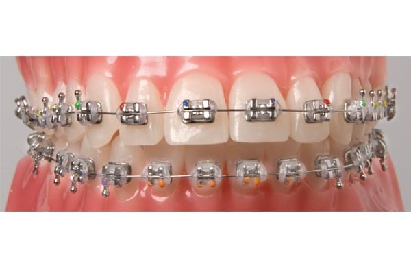 Orthodontics (Braces) in Mumbai